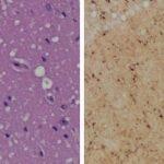 Neue-Haut-test erkennt eine Prionen-Infektion, bevor Symptome auftreten
